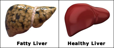 Faty and Healthy Liver